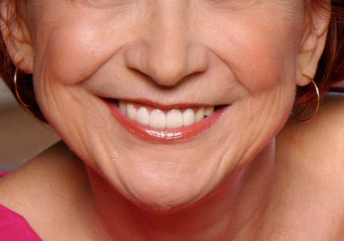 Model Smile with 4 Porcelain Veneers