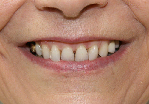 Model before 4 Porcelain Veneers